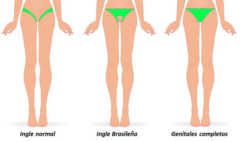 Foto de tipos de depilación íntima